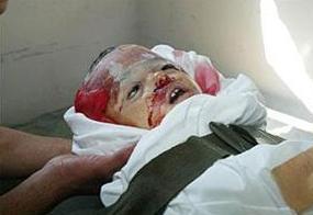 Palestinian DU Victime